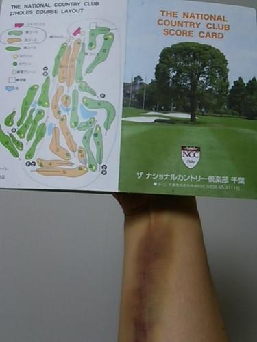 20170616 ゴルフ肉離れ.JPG